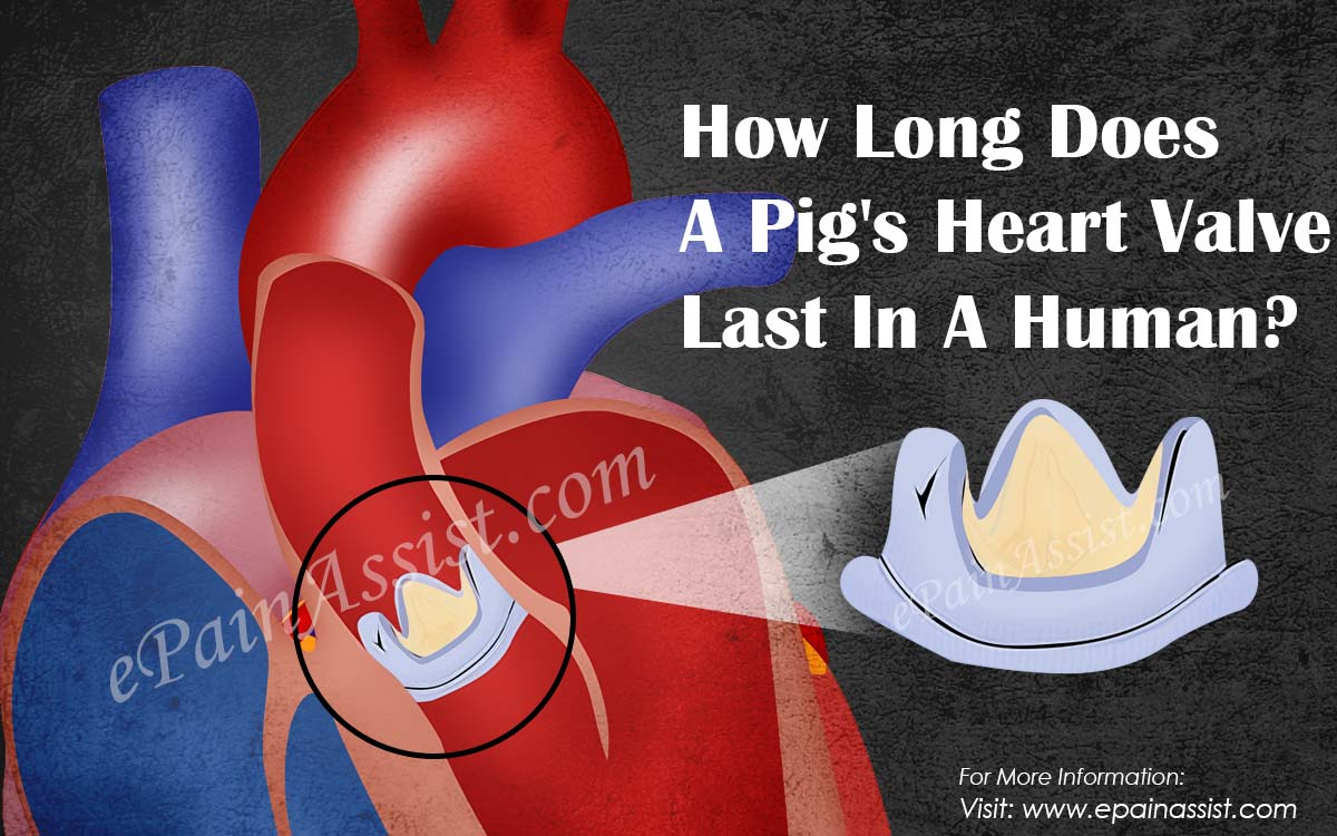 How Long Does A Pig's Heart Valve Last In A Human?