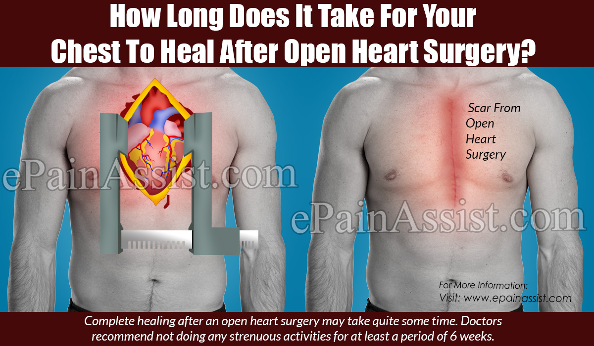 How Long Does It Take For Your Chest To Heal After Open Heart Surgery?