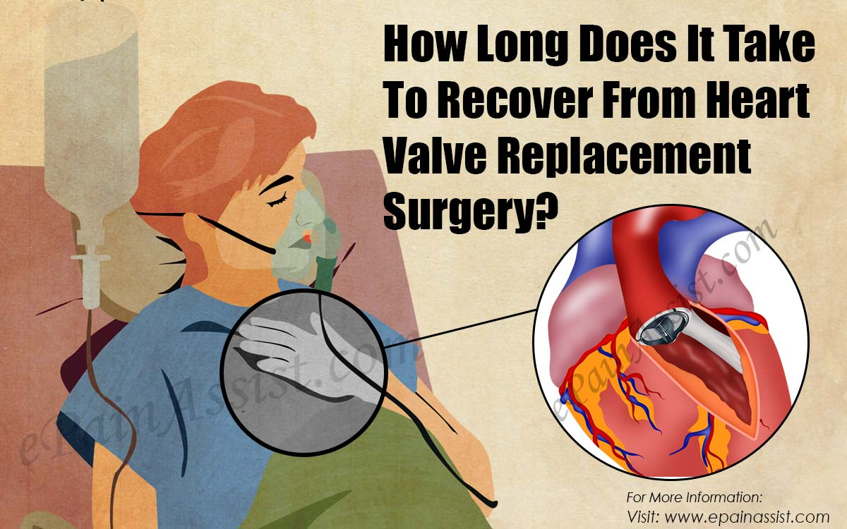 How Long Does It Take To Recover From Heart Valve Replacement Surgery?