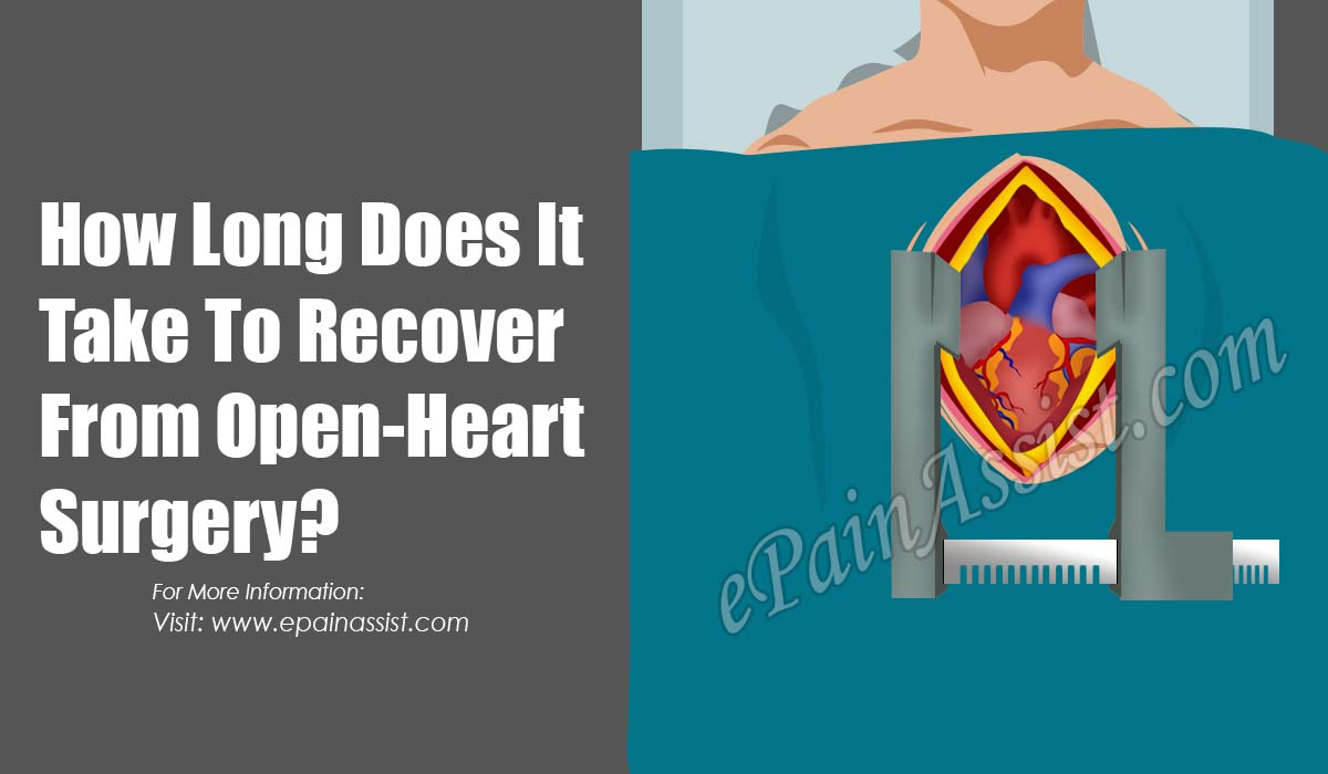 How Long Does It Take To Recover From Open-Heart Surgery?