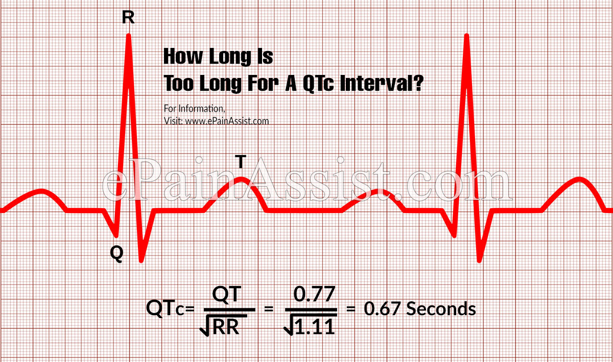 How Long Is Too Long For A QTc Interval?