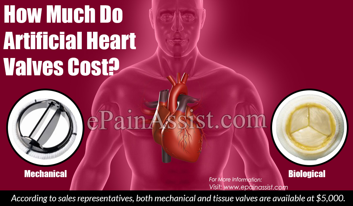 How Much Do Artificial Heart Valves Cost?