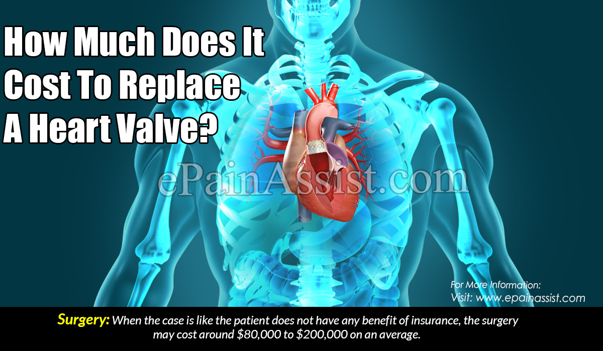How Much Does It Cost To Replace A Heart Valve?