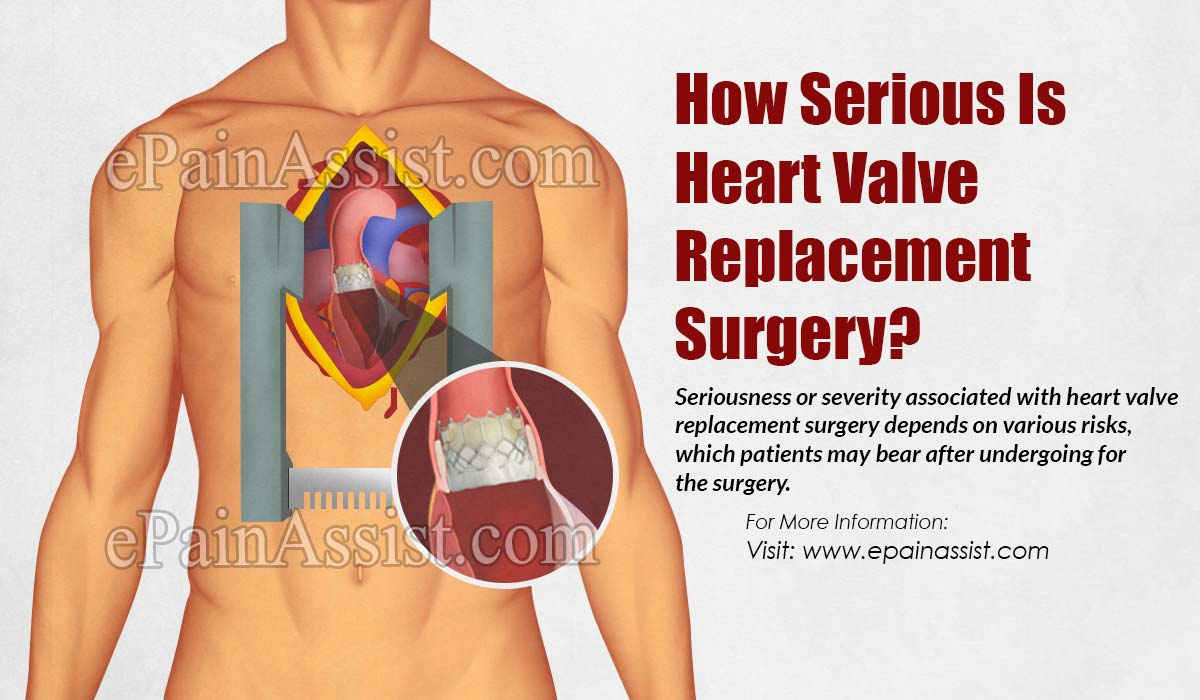 How Serious Is Heart Valve Replacement Surgery?