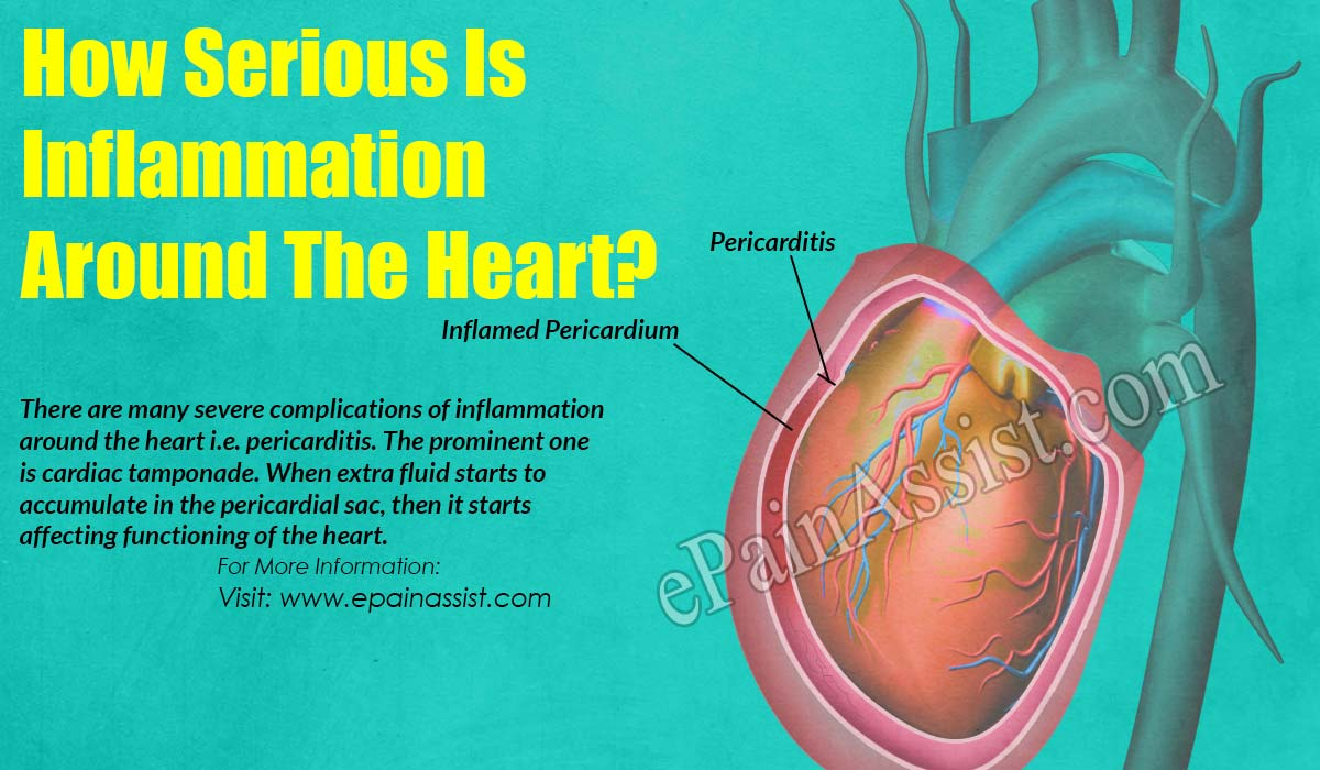 How Serious Is Inflammation Around The Heart?