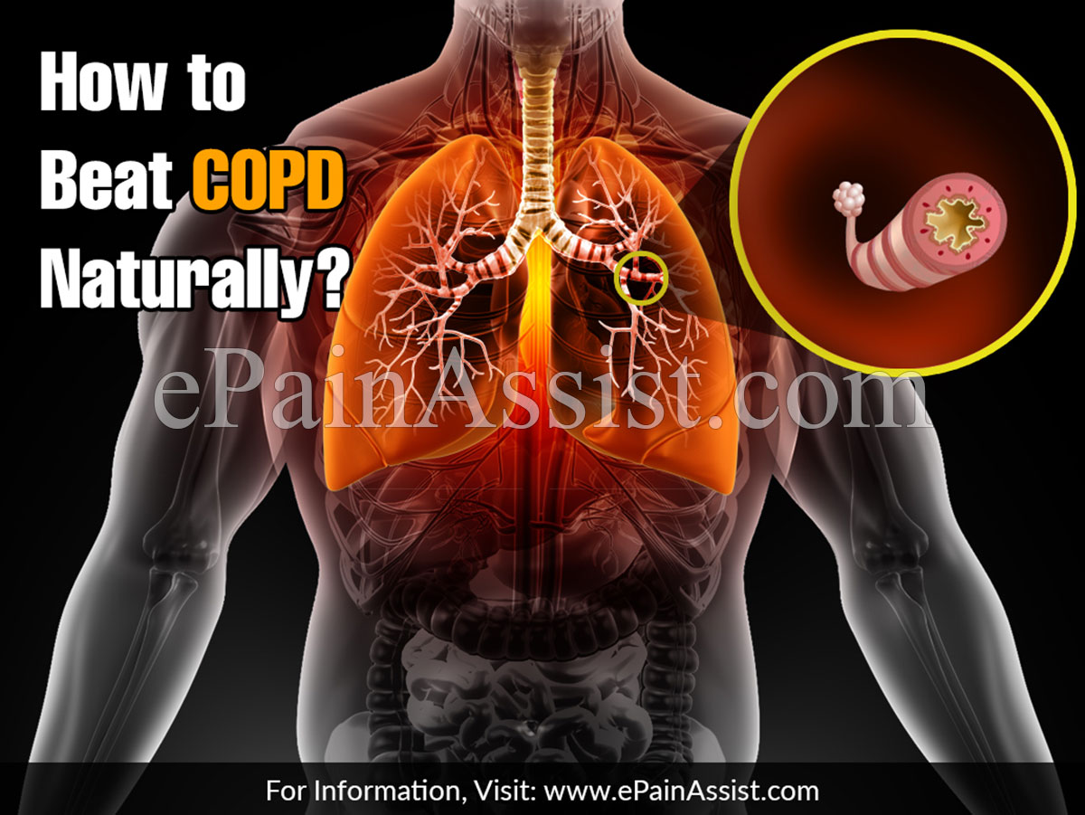How to Beat COPD Naturally?