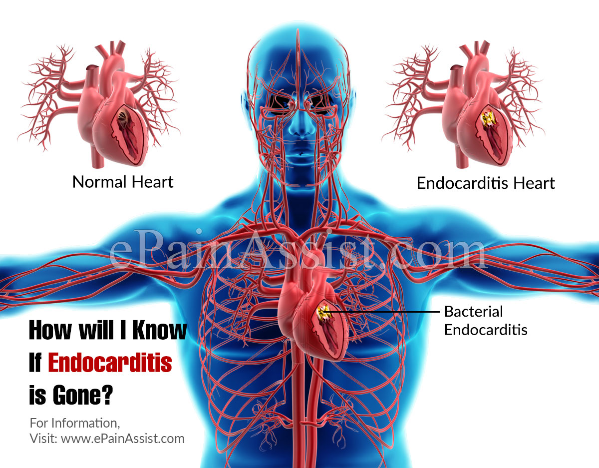 How will I Know If Endocarditis is Gone?