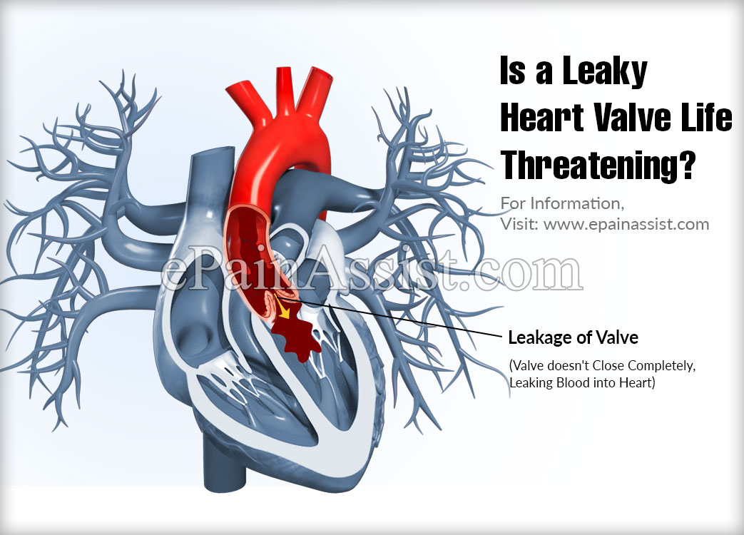 Is a Leaky Heart Valve Life Threatening?