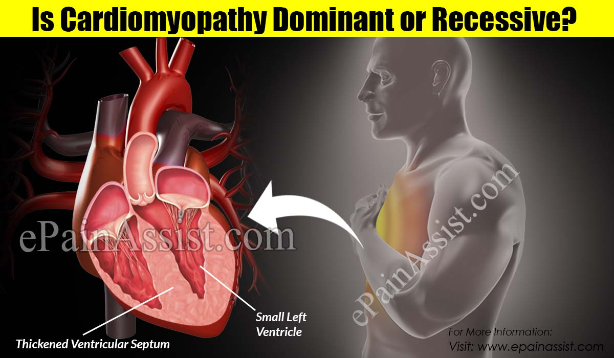 Is Cardiomyopathy Dominant or Recessive?