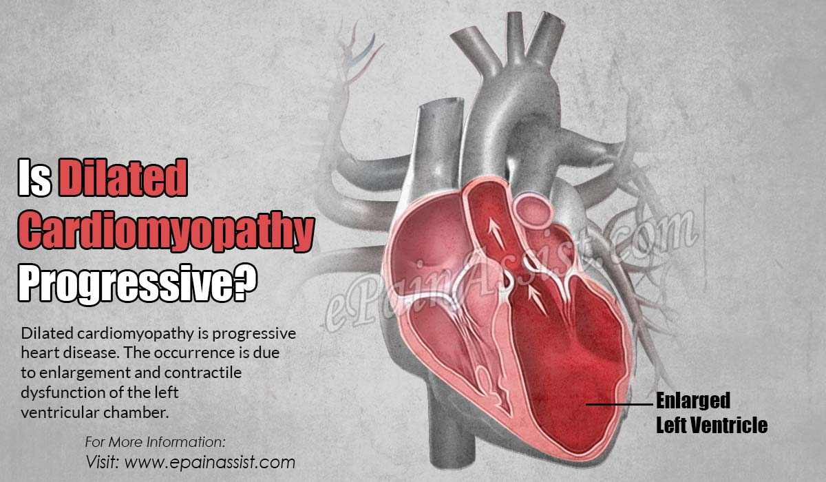 Is Dilated Cardiomyopathy Progressive?