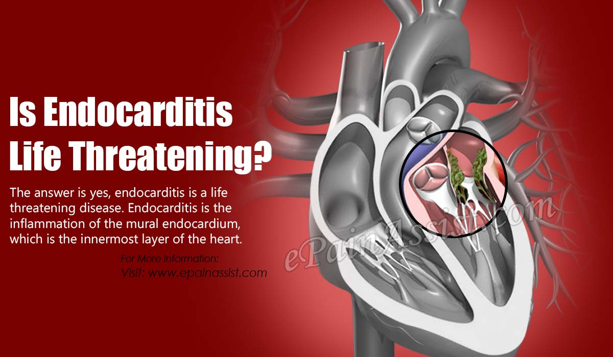 Is Endocarditis Life Threatening?