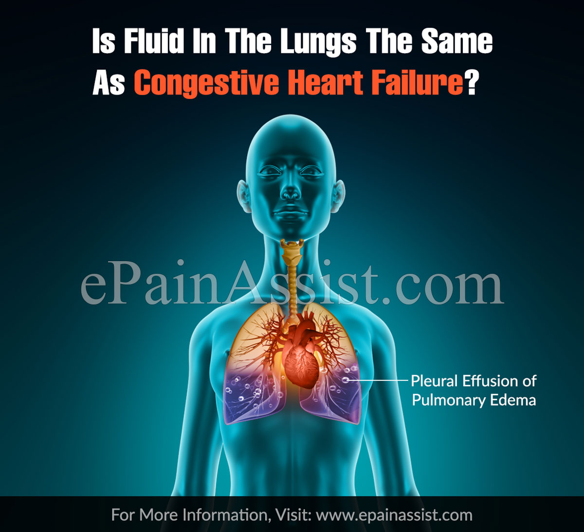 Is Fluid In The Lungs The Same As Congestive Heart Failure?