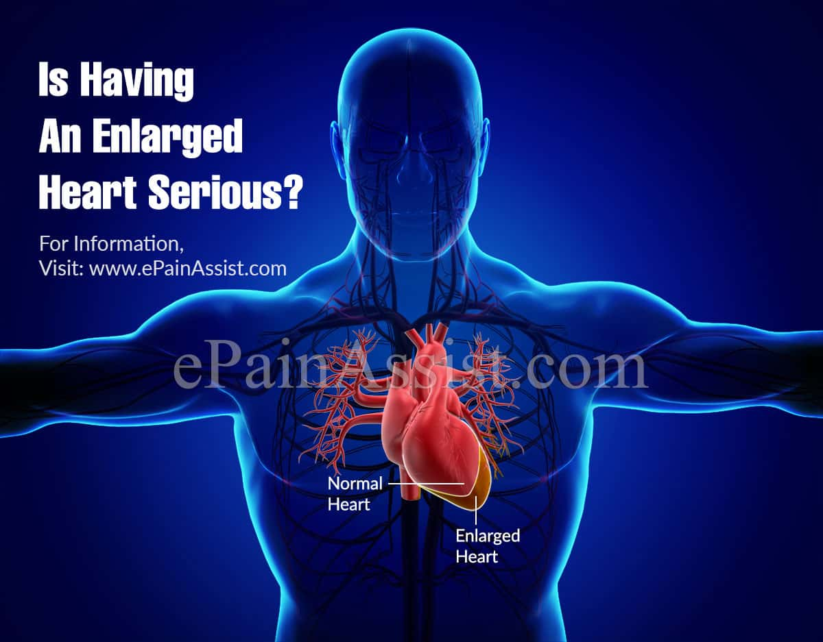 Is Having An Enlarged Heart Serious?