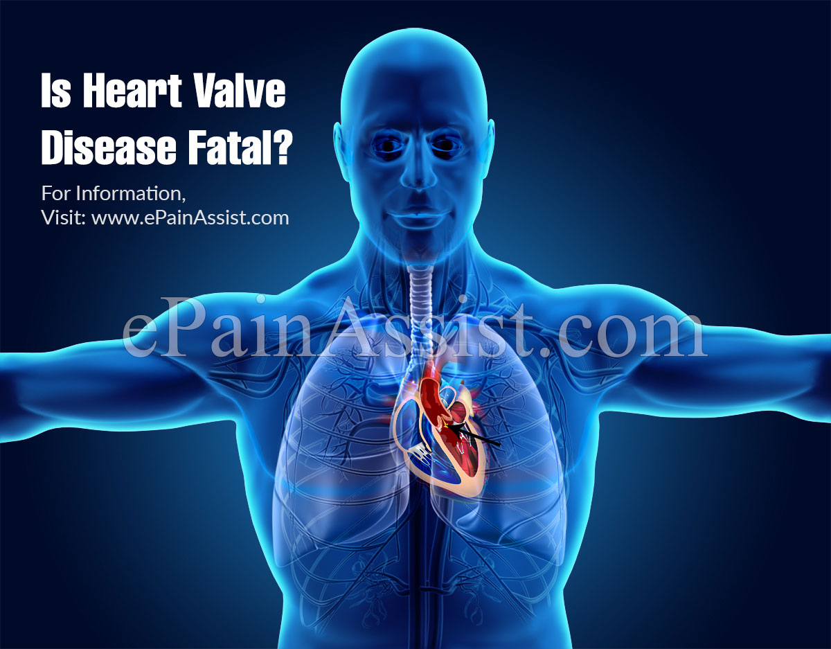 Is Heart Valve Disease Fatal?