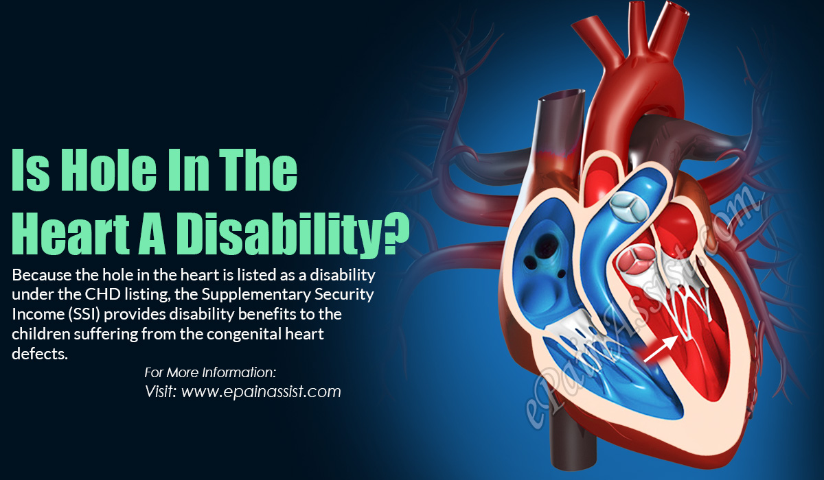 Is Hole In The Heart A Disability?