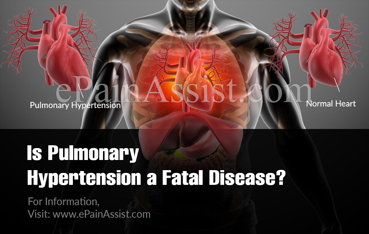Is Pulmonary Hypertension A Fatal Disease?