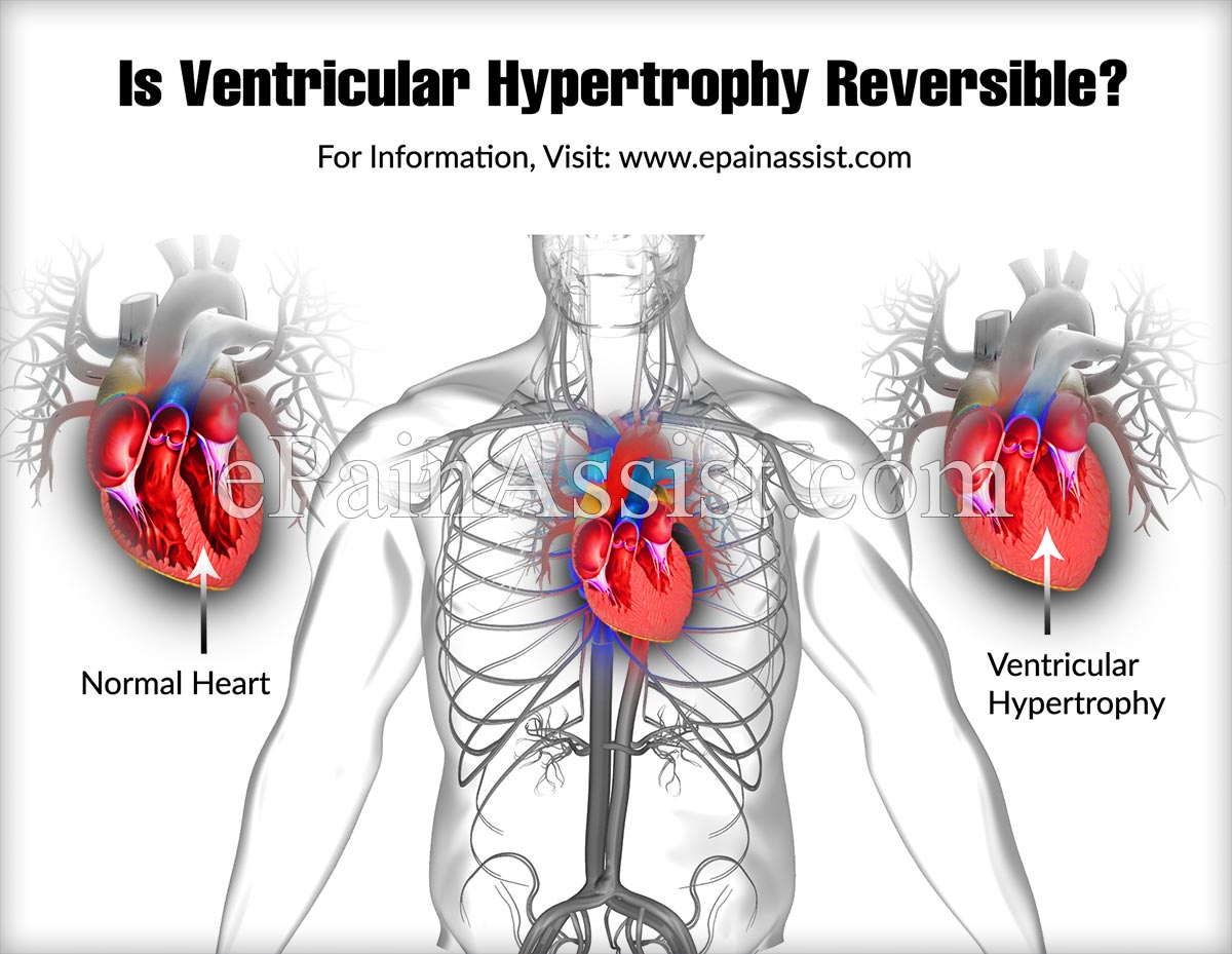 Is Ventricular Hypertrophy Reversible?