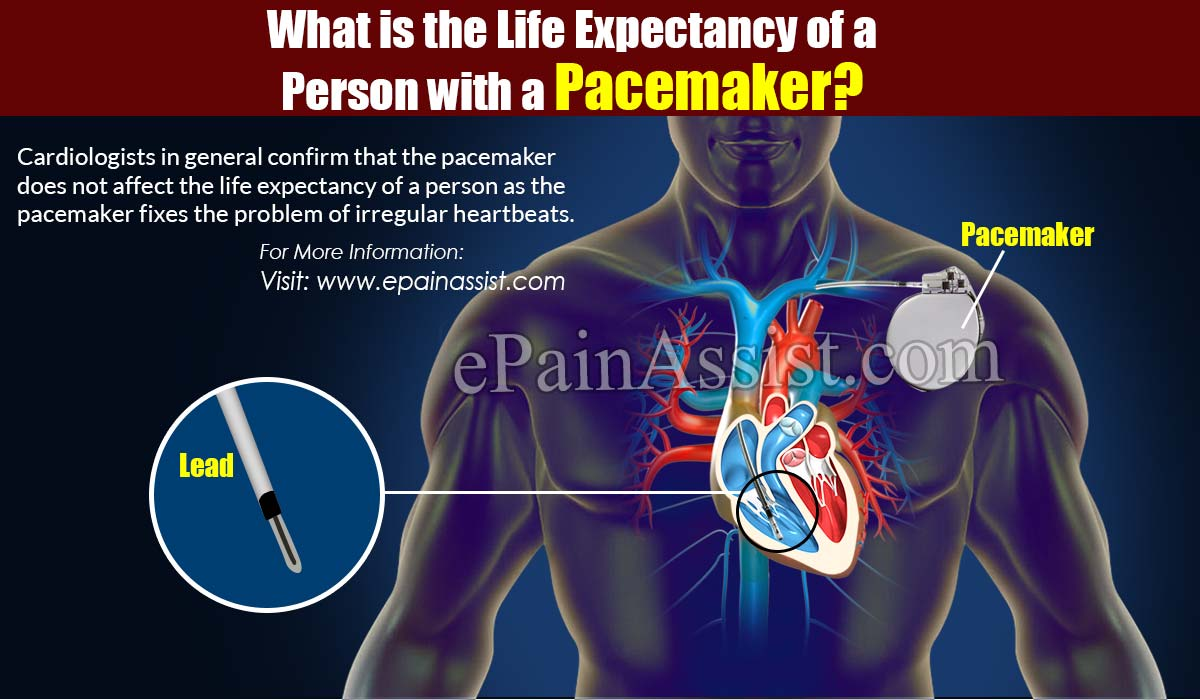 What is the Life Expectancy of a Person with a Pacemaker?