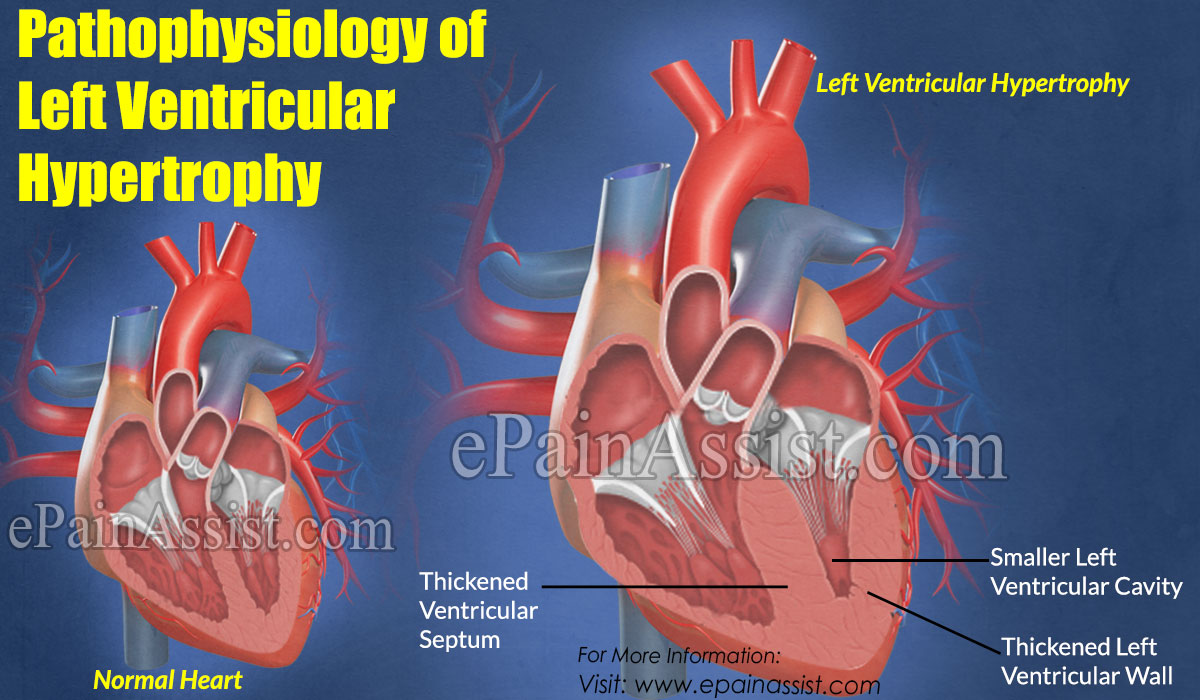 Is Left Ventricular Hypertrophy a Heart Attack?