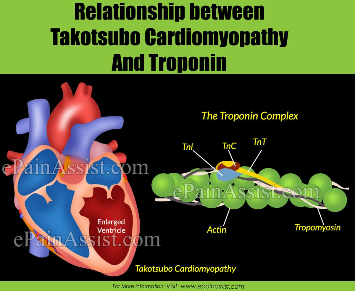 Relationship between Takotsubo Cardiomyopathy and Troponin