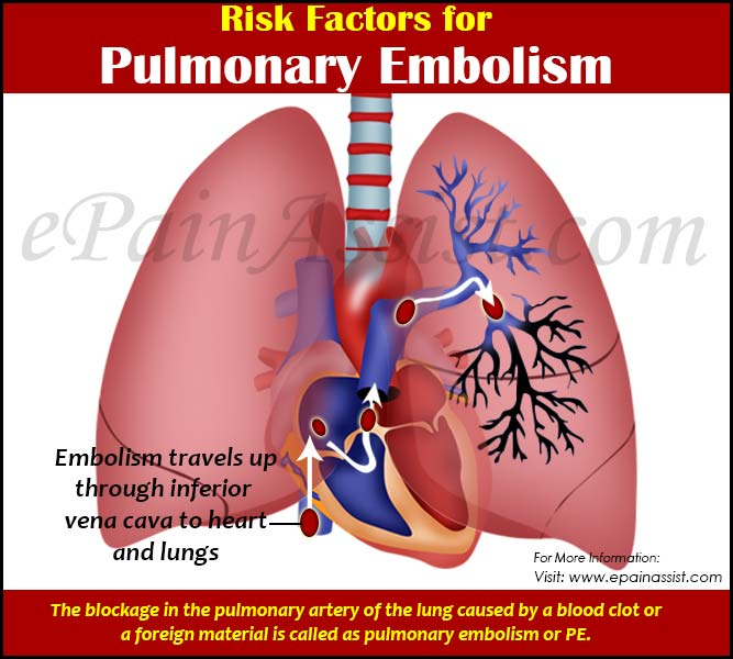 Risk Factors For Pulmonary Embolism Or PE