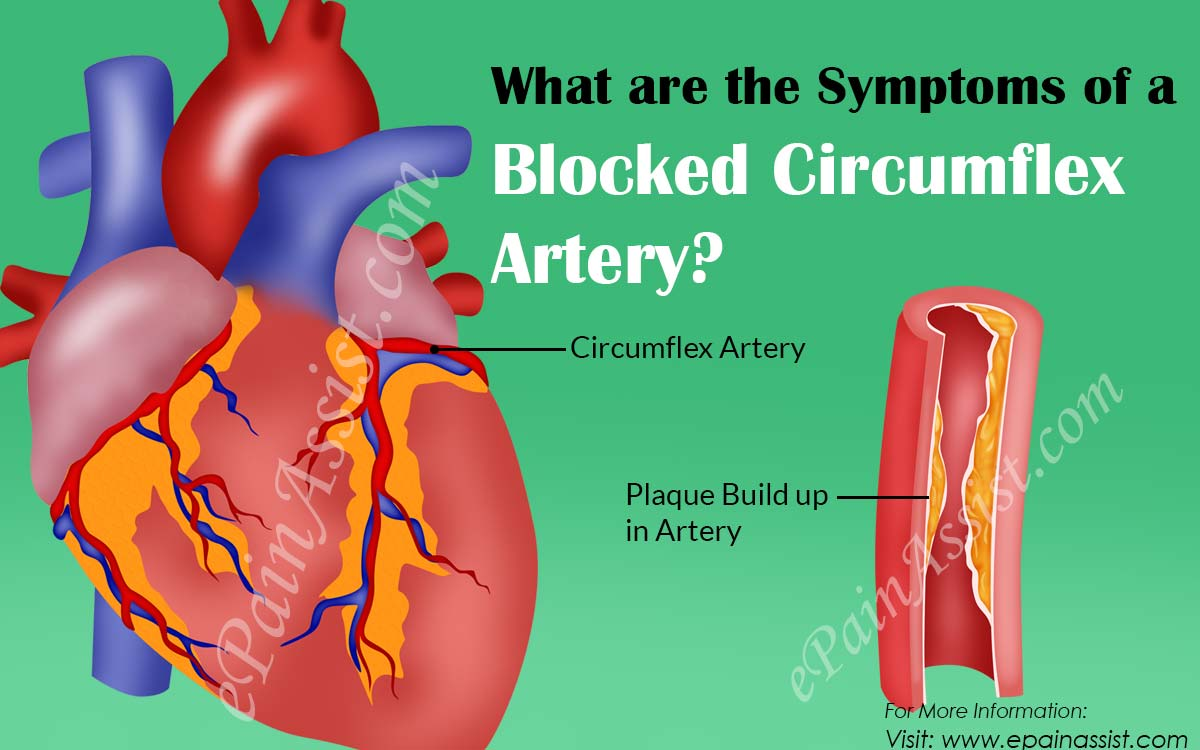 Symptoms of a Blocked Circumflex Artery & Its Treatment