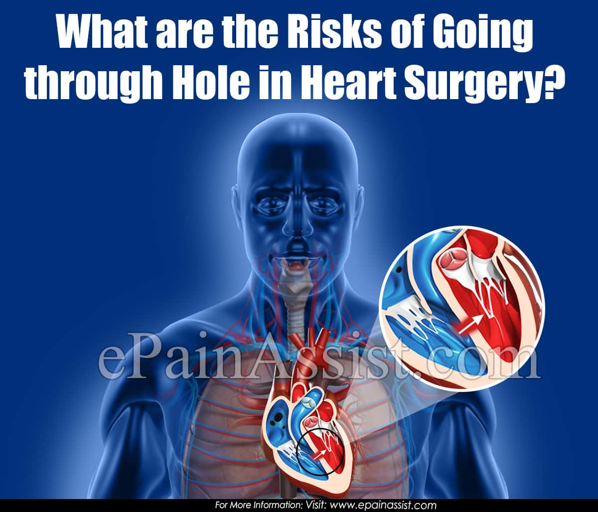 What are the Risks of Going through Hole in Heart Surgery?