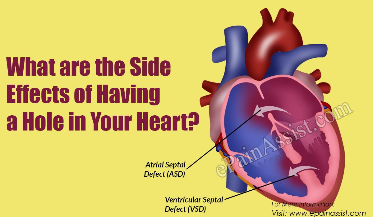 What are the Side Effects of Having a Hole in Your Heart?