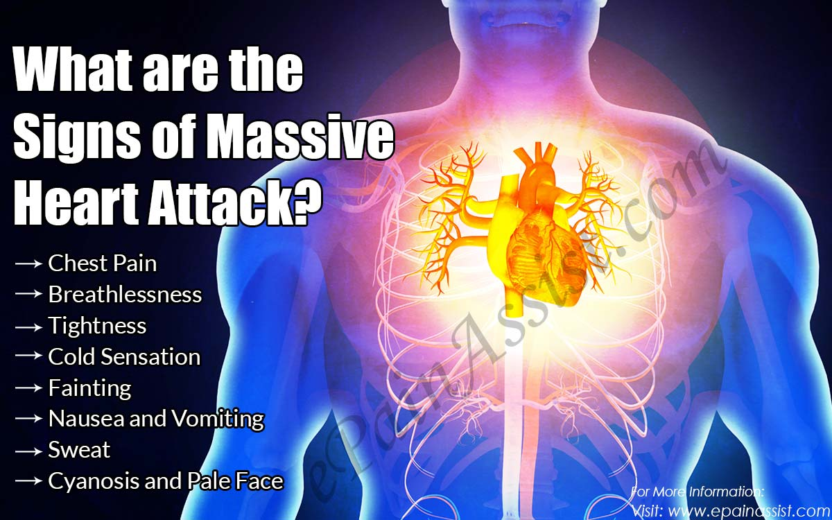 What are the Signs of a Massive Heart Attack?