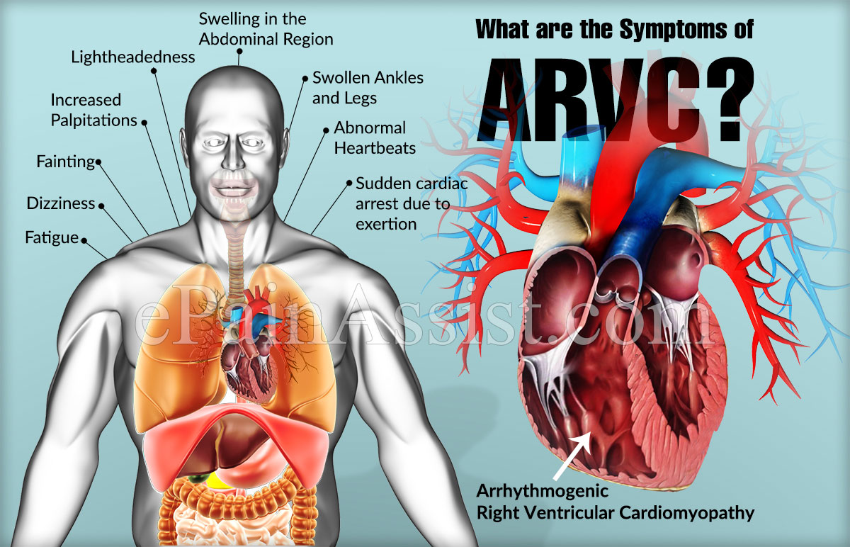 What are the Symptoms of ARVC?