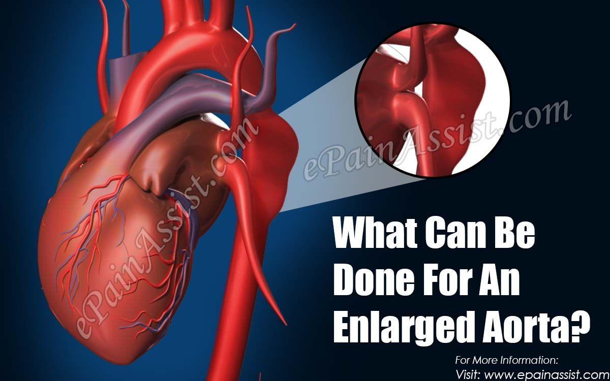 What Can Be Done For An Enlarged Aorta