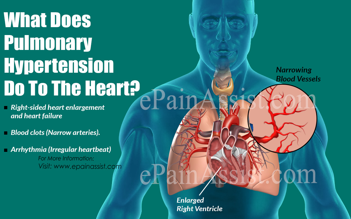 What Does Pulmonary Hypertension Do To The Heart?