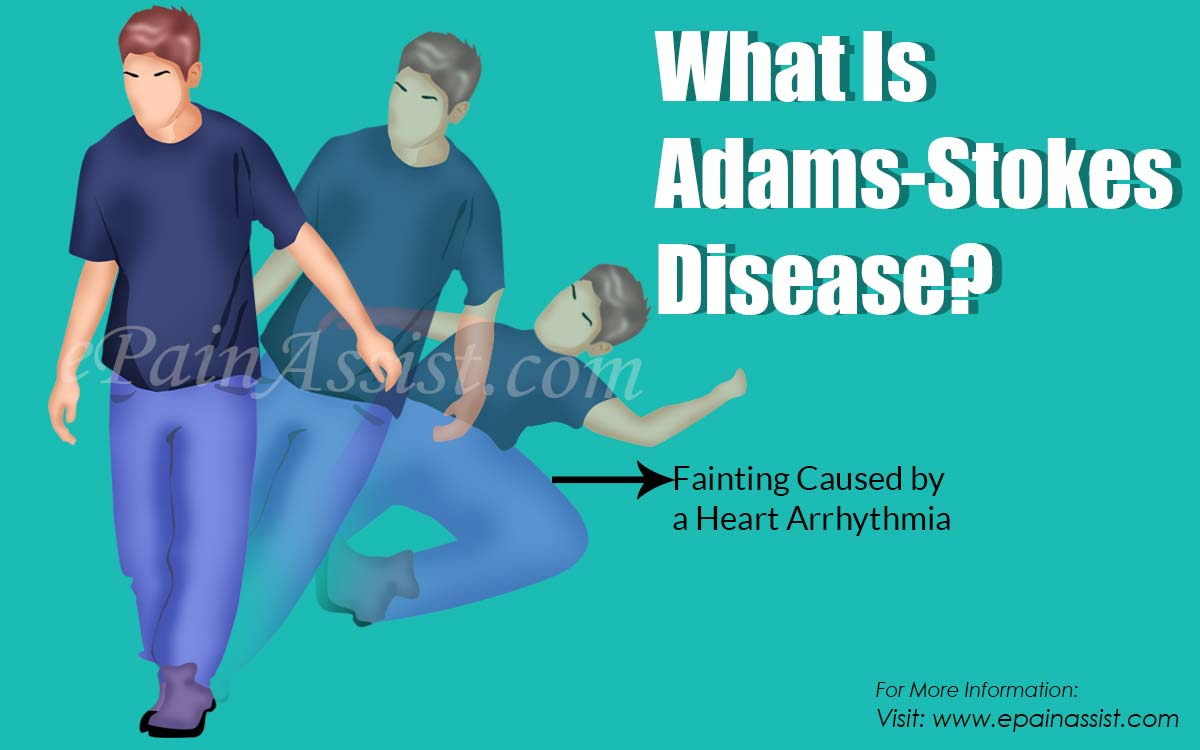 What Is Adams-Stokes Disease?