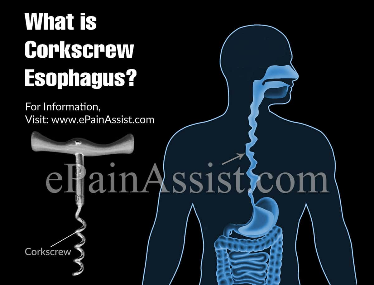 What is Corkscrew Esophagus?