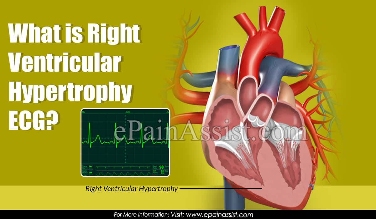 What is Right Ventricular Hypertrophy ECG?