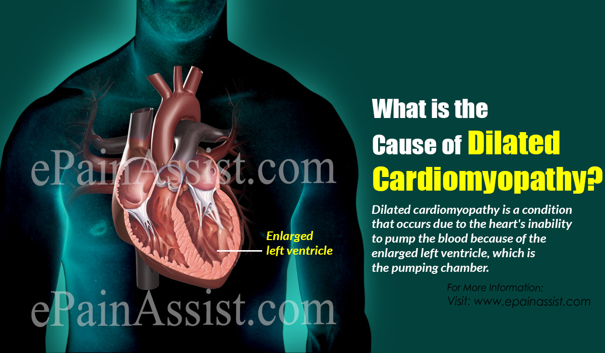 What is the Cause of Dilated Cardiomyopathy?