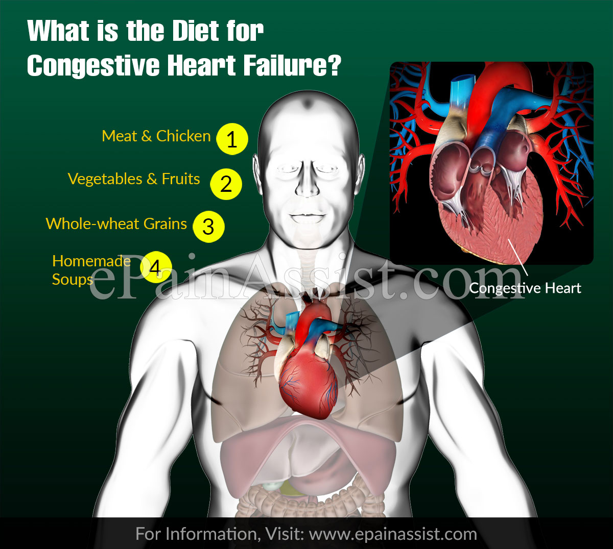 What is the Diet for Congestive Heart Failure?