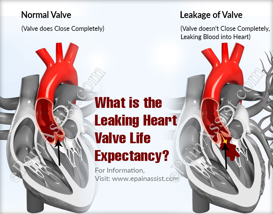 What is the Leaking Heart Valve Life Expectancy?