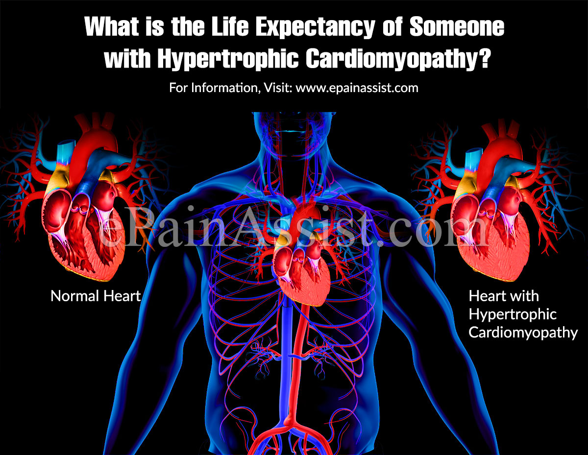 What is the life expectancy of someone with hypertrophic cardiomyopathy