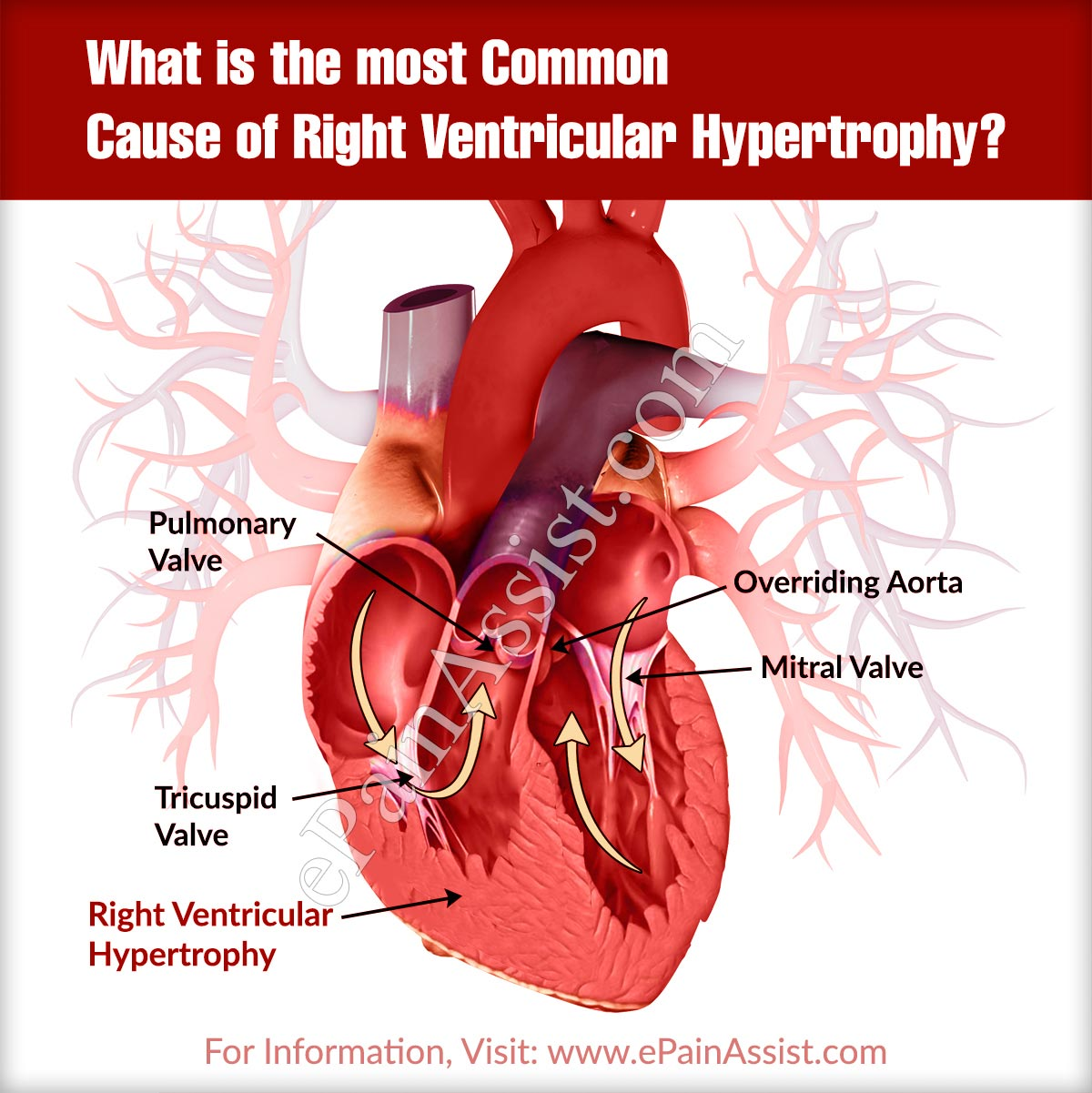What is the most Common Cause of Right Ventricular Hypertrophy?