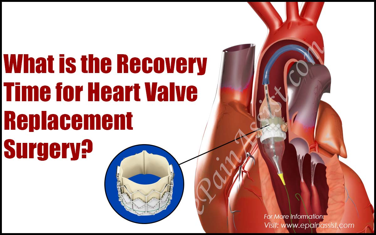 What is the Recovery Time for Heart Valve Replacement Surgery?