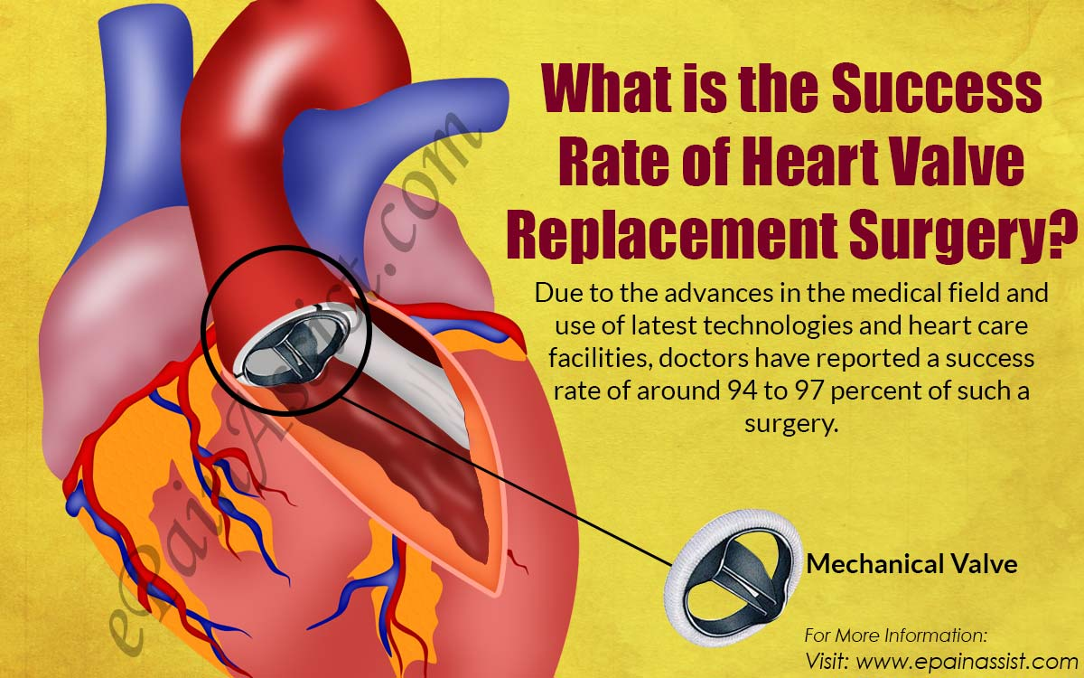 What is the Success Rate of Heart Valve Replacement Surgery?