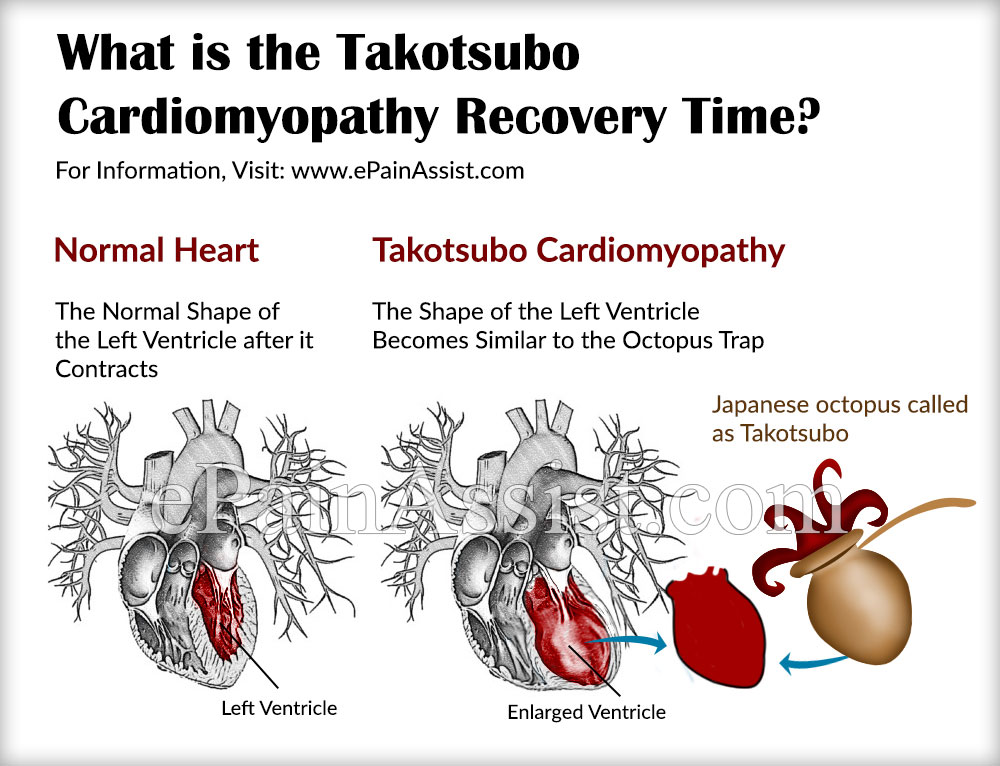 What is the Takotsubo Cardiomyopathy Recovery Time?