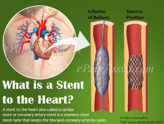 What is a Stent to the Heart?