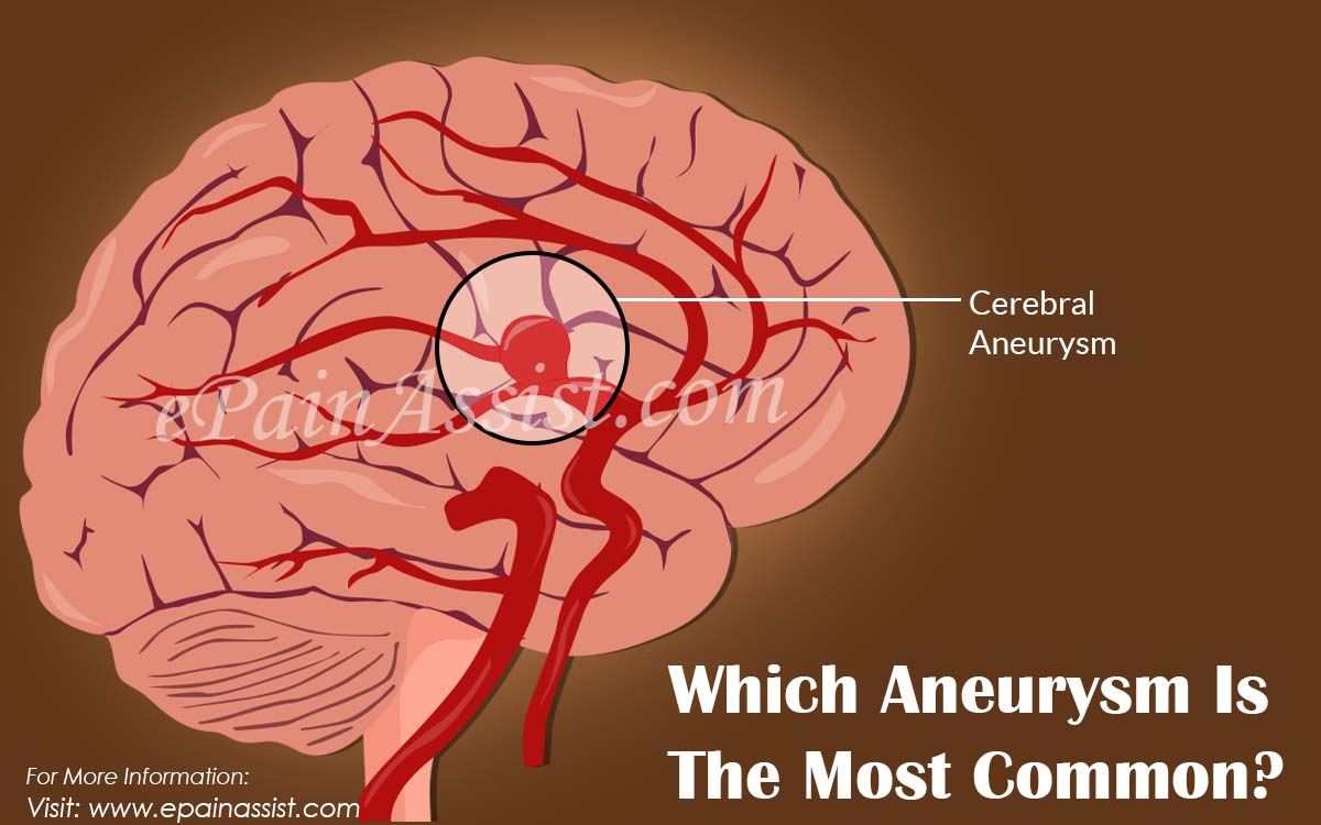 Which Aneurysm Is The Most Common?