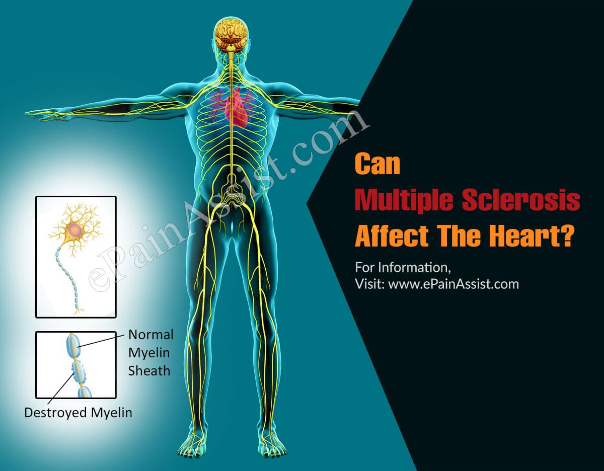 Can Multiple Sclerosis Affect The Heart?