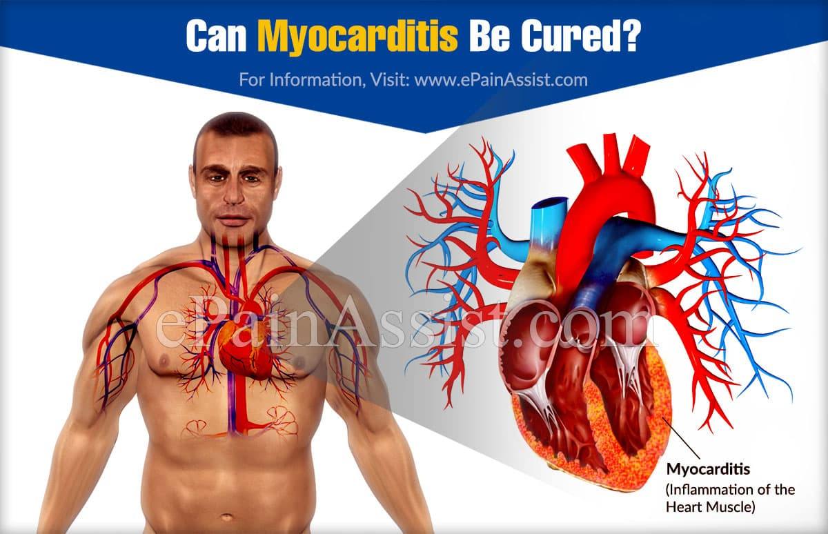 Can Myocarditis Be Cured?