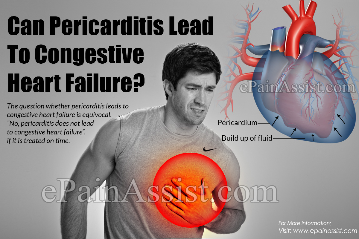 Can Pericarditis Lead To Congestive Heart Failure?