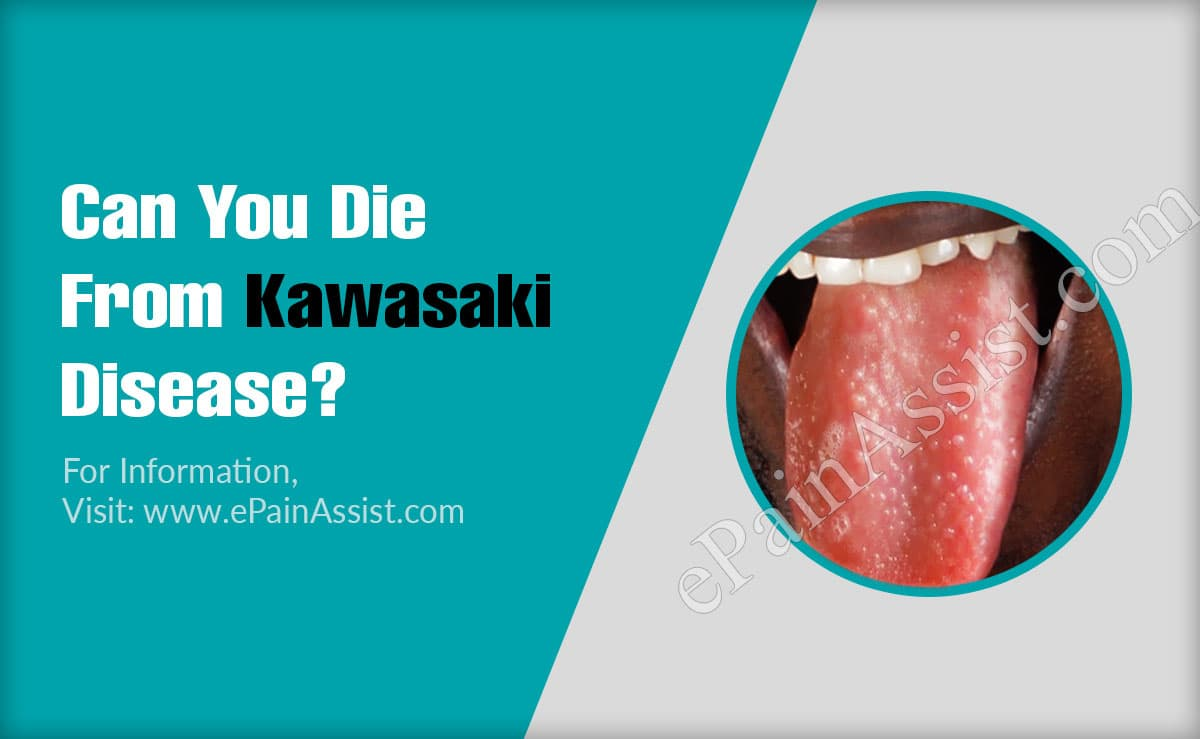 Can You Die From Kawasaki Disease?