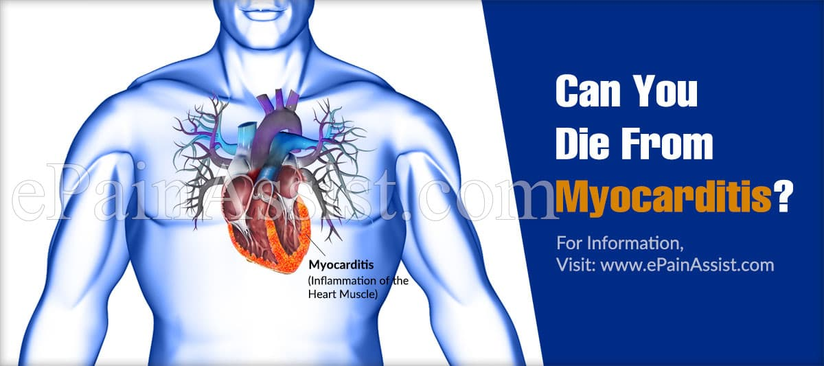 Can You Die From Myocarditis?